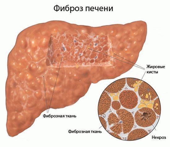 Форум лечения гепатита с 1b